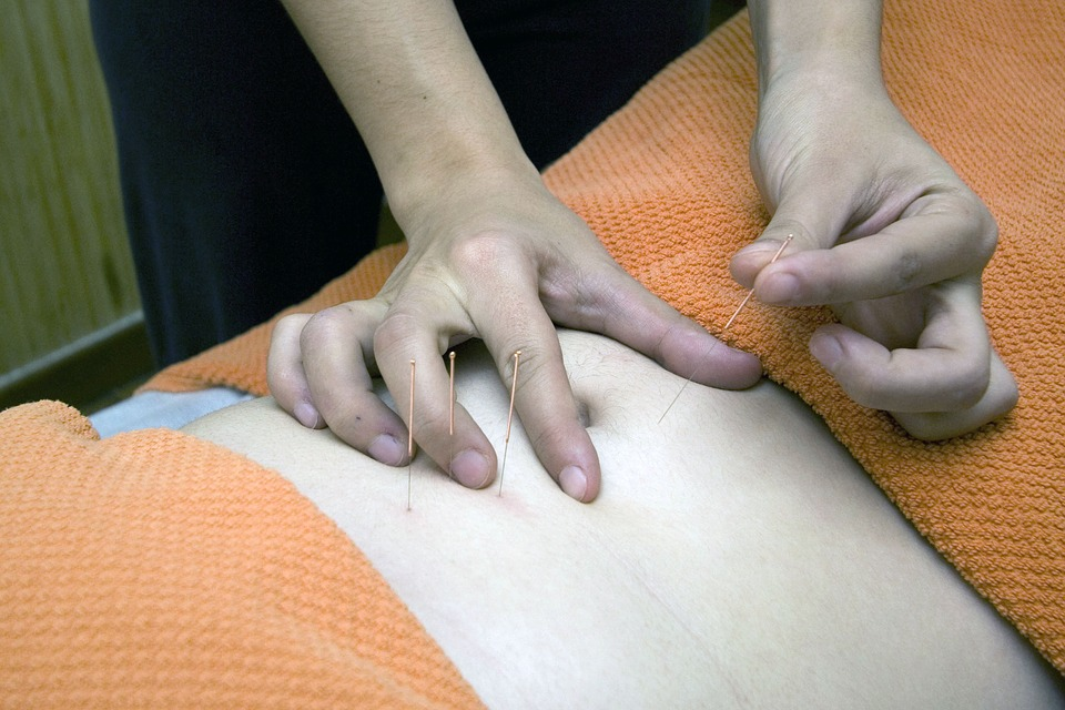 medicare to pay for acupuncture
